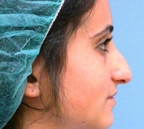 לפני ניתוח אף