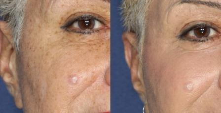 Фотографии, произведенные до процедуры и после нее