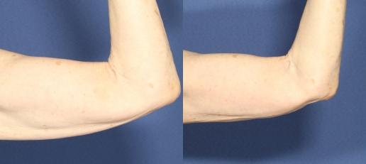 בודיטייט זרועות לפני ואחרי