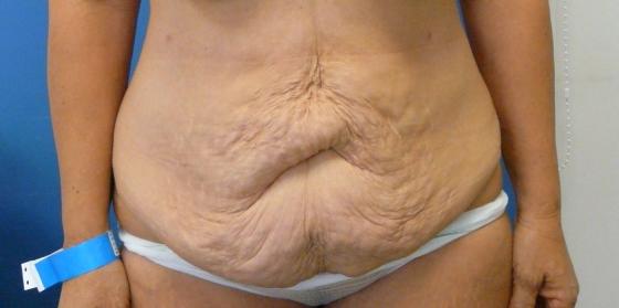 ניתוח מתיחת בטן - לפני