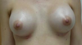 תמונה אחרי ניתוח הגדלת חזה