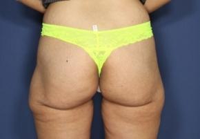 שאיבת שומן ירכיים אחרי