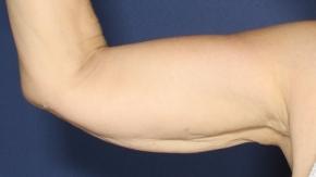 אחרי המסת שומן בודי טייט זרועות