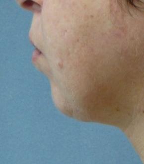 סנטר כפול לאחר הטיפול ב NECKTITE