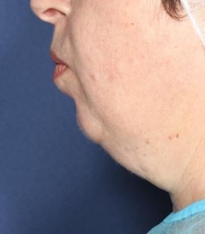 סנטר כפול לפני הטיפול ב NECKTITE