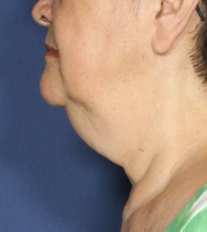 טיפול בסנטר כפול נקטייט תמונה לפני הטיפול
