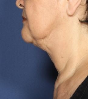טיפול בסנטר כפול נקטייט תמונה אחרי הטיפול