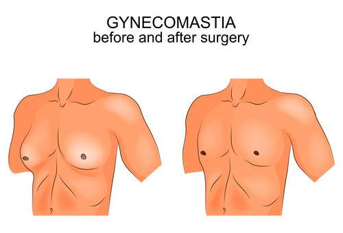 גניקומסטיה – ניתוח להקטנת חזה גברי | דר' גלזינגר