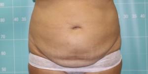 לפני הקפאת שומן