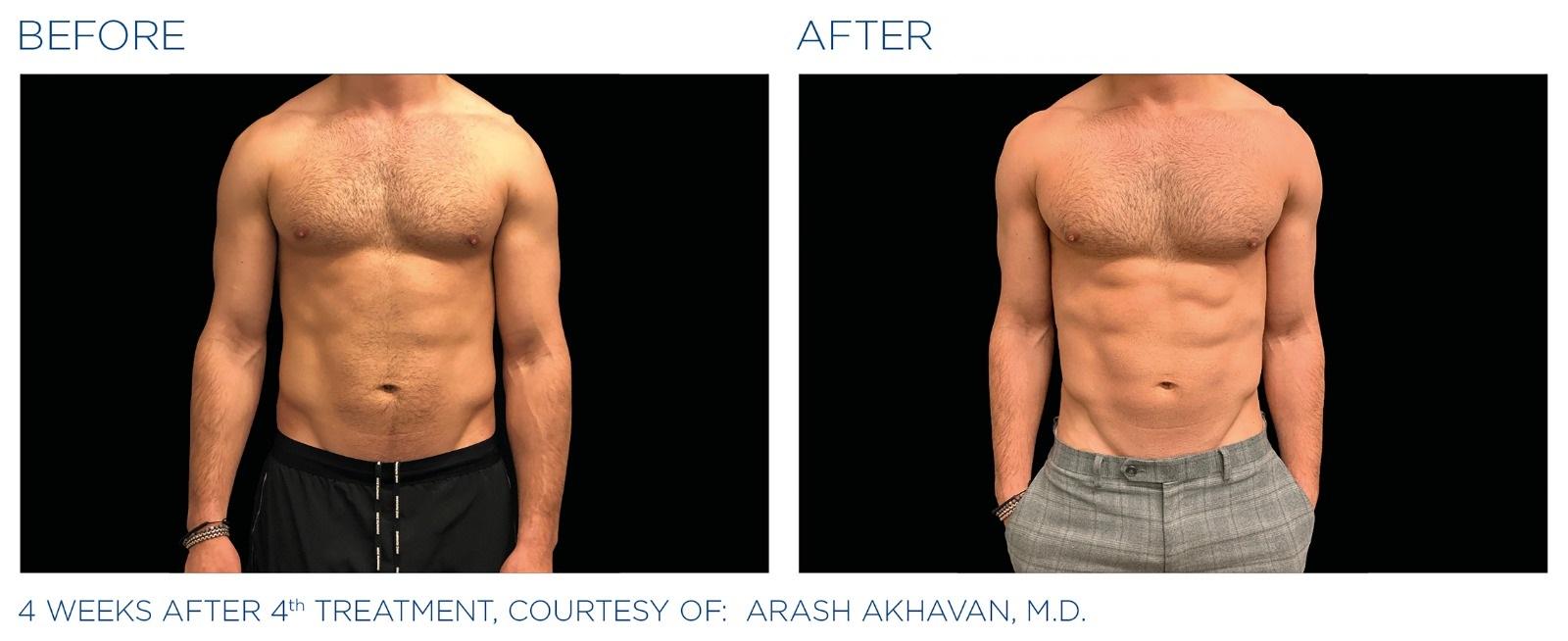 טיפול EMSCULPT - לפני ואחרי